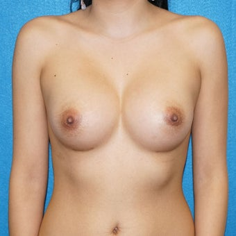 18-24 year old woman treated with Breast Augmentation after 2488303