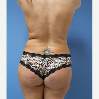 45-54 year old woman treated with Brazilian Butt Lift after 2256792