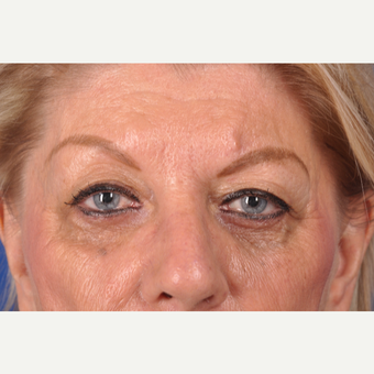 69 year old woman treated with upper eyelid surgery before 3220655
