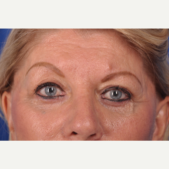 69 year old woman treated with upper eyelid surgery after 3220655
