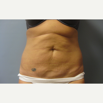 39 year old woman treated with Tummy Tuck and Liposuction before 3108172