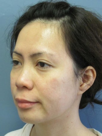 Chin Surgery on 32-year-old 841886