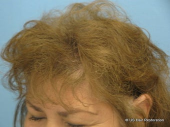 45-54 year old woman treated with Hair Transplant for treatment of Androgenetic Alopecia 1560124
