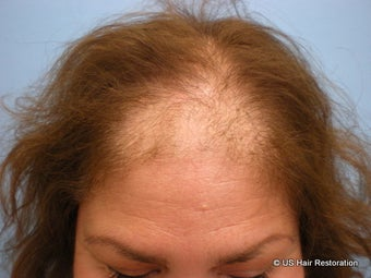 45-54 year old woman treated with Hair Transplant for treatment of Androgenetic Alopecia before 1560124