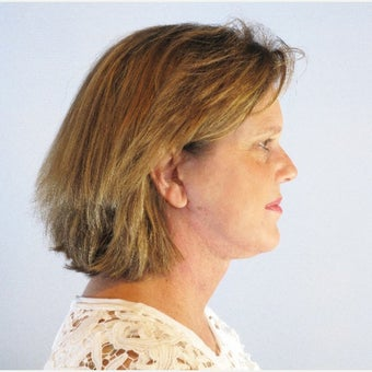 45-54 year old woman treated with Neck Lift 1969442