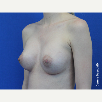 25-34 year old woman treated with Sientra Breast Implants after 3353047