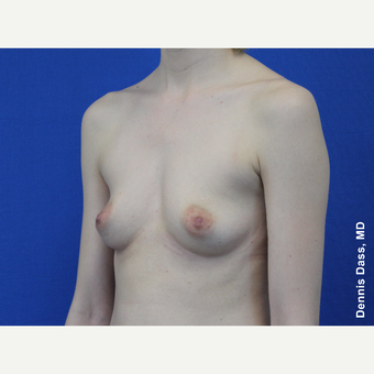 25-34 year old woman treated with Sientra Breast Implants before 3353047