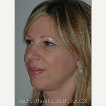 48 year old woman treated with Facelift after 3486283