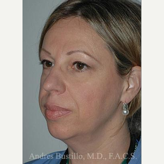 48 year old woman treated with Facelift before 3486283