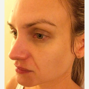 25-34 year old woman treated with Sculptra 1619554