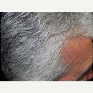 PRP for Hair Loss after 2236141