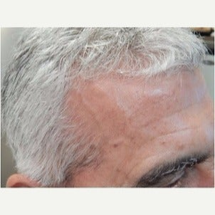 PRP for Hair Loss before 2236141