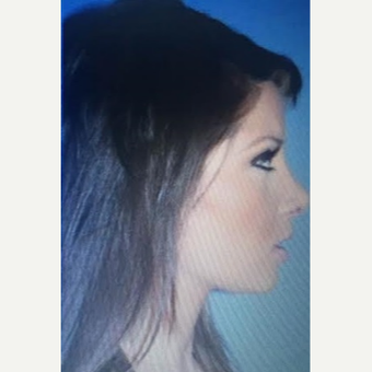 25-34 year old woman treated with Rhinoplasty after 3260846
