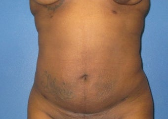 25-34 year old woman treated with Liposuction after 3724978