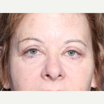 55-64 year old woman treated with Eyelid Surgery (view 1 of 2) after 3180530