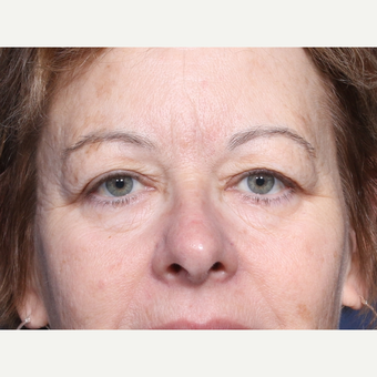 55-64 year old woman treated with Eyelid Surgery (view 1 of 2) before 3180530