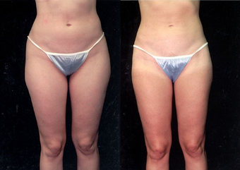 28-year-old woman treated with Liposuction. before 574524