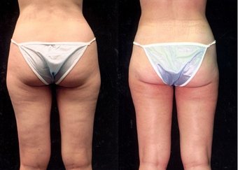 28-year-old woman treated with Liposuction. after 574524