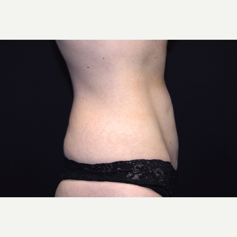 35-44 year old woman treated with Tummy Tuck before 3281020