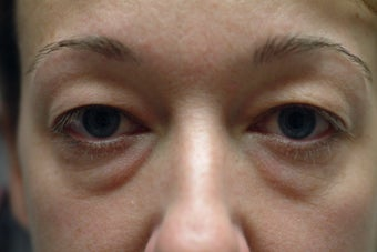 41 year old women with excess upper eyelid skin and lower eyelid bags before 1323947