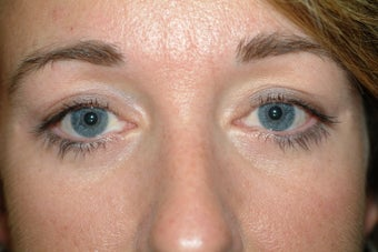 41 year old women with excess upper eyelid skin and lower eyelid bags after 1323947