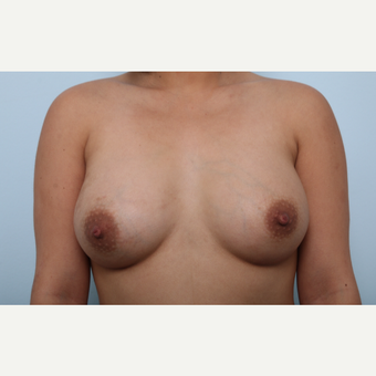 Breast Augmentation after 3339888