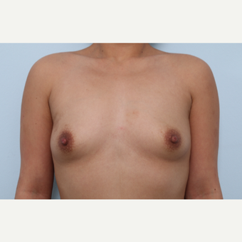 Breast Augmentation before 3339888