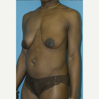 25-34 year old woman treated with Mommy Makeover before 3281857