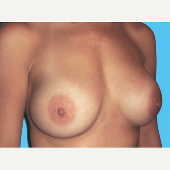 Breast Augmentation after 3732712