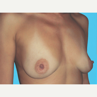 Breast Augmentation before 3732712