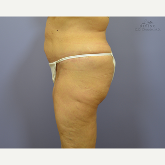 65-74 year old woman treated with Panniculectomy after 3421670