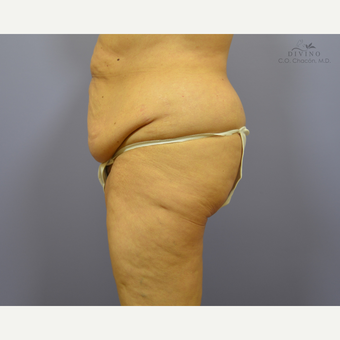 65-74 year old woman treated with Panniculectomy before 3421670