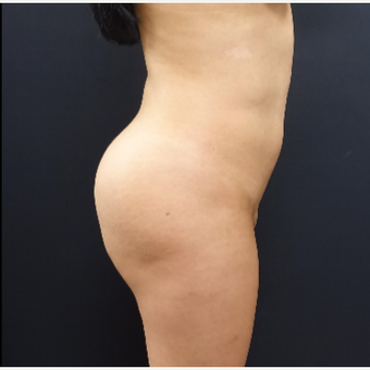 25-34 year old woman treated with Brazilian Butt Lift Revision before 3286177