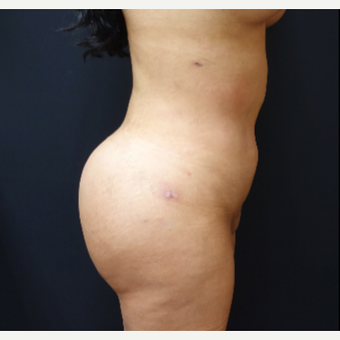 25-34 year old woman treated with Brazilian Butt Lift Revision after 3286177