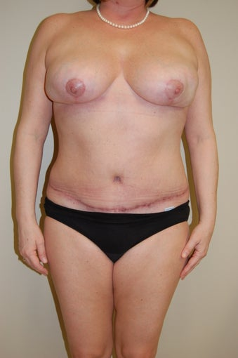Abdominoplasty after 510755