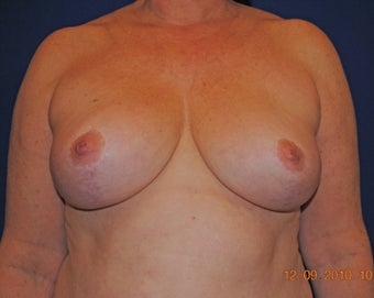 Breast Reduction after 402903