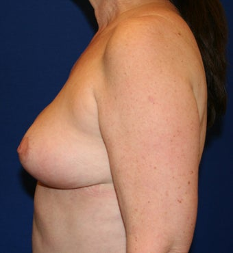 Breast Reduction 402903