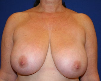 Breast Reduction before 402903