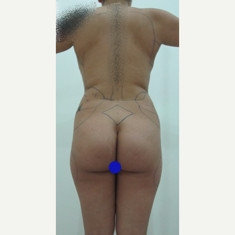 25-34 year old woman treated with Butt Augmentation before 3695260