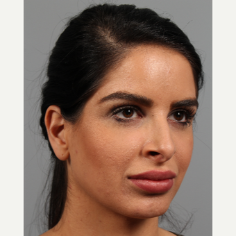 25-34 year old woman treated with Rhinoplasty before 3287131
