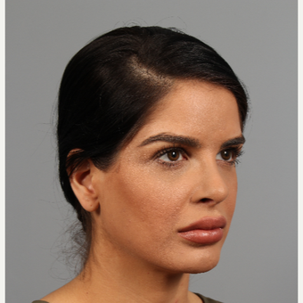25-34 year old woman treated with Rhinoplasty after 3287131