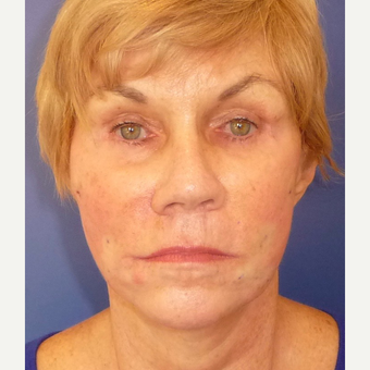 65-74 year old woman treated with Non Surgical Face Lift after 3691854