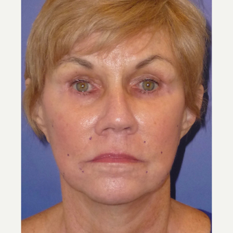 65-74 year old woman treated with Non Surgical Face Lift before 3691854