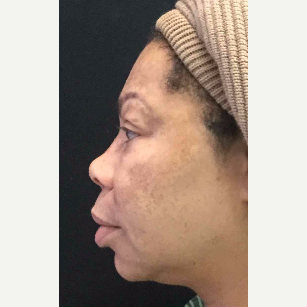 55-64 year old woman treated with Eyelid Surgery before 3218579