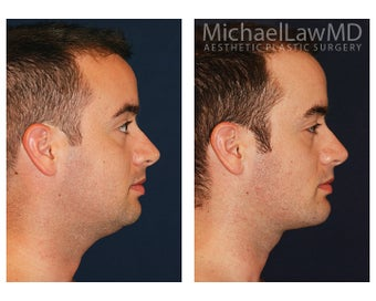 Chin Liposuction before 1341181