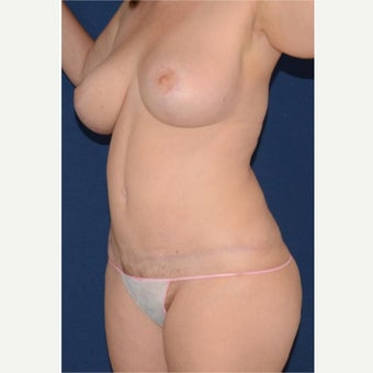 35-44 y.o. woman treated with Mommy Makeover; breast lift, tummy tuck, circumferential liposculpture