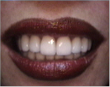 Smile make over, dental crowns, porcelain veneers, gummy smile after 1490459