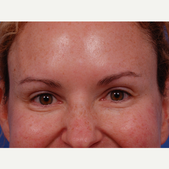 35-44 year old woman treated with Botox in the glabella, crows feet, jelly roll, and forehead areas. after 3180639