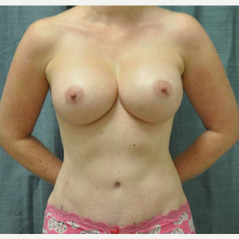 35-44 year old woman treated with Tummy Tuck after 3445883
