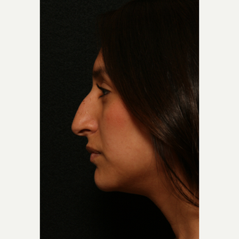25-34 year old woman treated with Rhinoplasty before 2814326